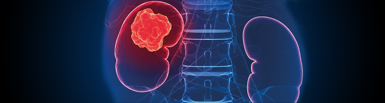 Kidney Cancer Treatment In Bangalore Uro Oncologist In Bangalore 10 Best Cancer Treatment In Bangalore Clinic For Cancer