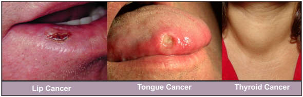 10 Best Cancer Treatment In Bangalore Clinic For Cancer