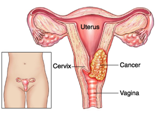 Ovarian Cancer Treatment In Bangalore Dr Sandeep Nayak Macs Clinic Treatment For Cancer Clinic For Cancer