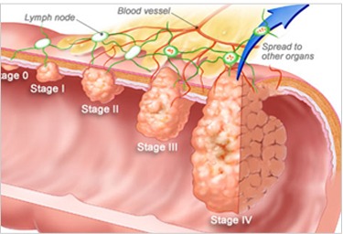 Colon Cancer Specialist In Bangalore Colon Cancer Treatment In Bangalore Best Colorectal Surgeon In Bangalore Best Colorectal Cancer Surgeon In Bangalore Colorectal Cancer Surgeon In Bangalore Cancer