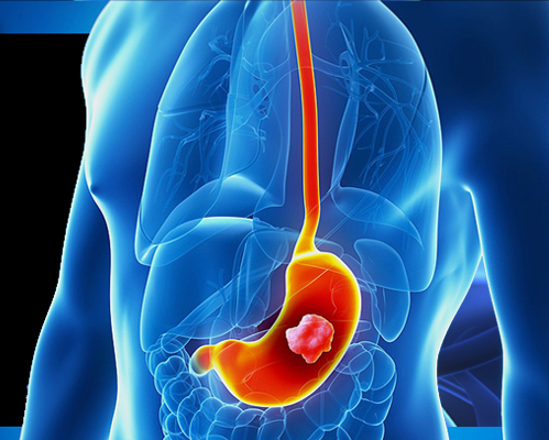 STOMACH(GASTRIC CANCER)